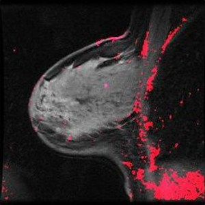 Photo: Contrast-enhanced MRI of a breast. Credit: Yaniv Gal